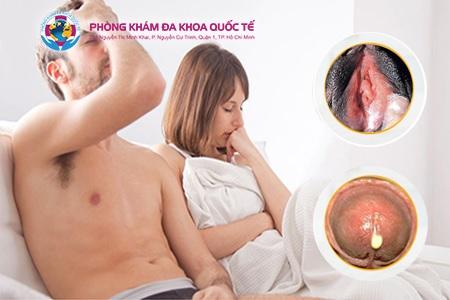 Dấu hiệu bệnh lậu ở bộ phận sinh dục