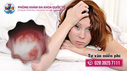 Viêm âm đạo là bệnh gì ?