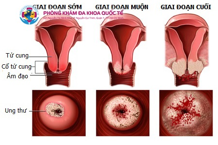Hình ảnh viêm lộ tuyến giai đoạn 1, 2, 3